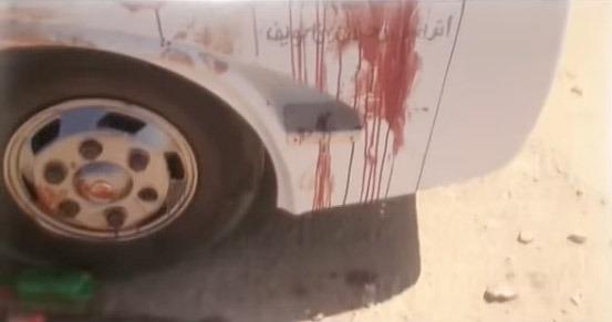 En av bussarna efter attacken.  Foto: Stillbild RT
